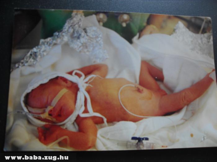 Egy naposan a koraszülött kis babám inkubátorban.....