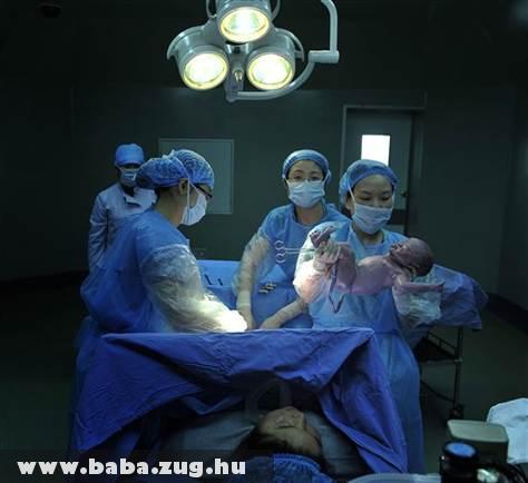 A születés pillanata
